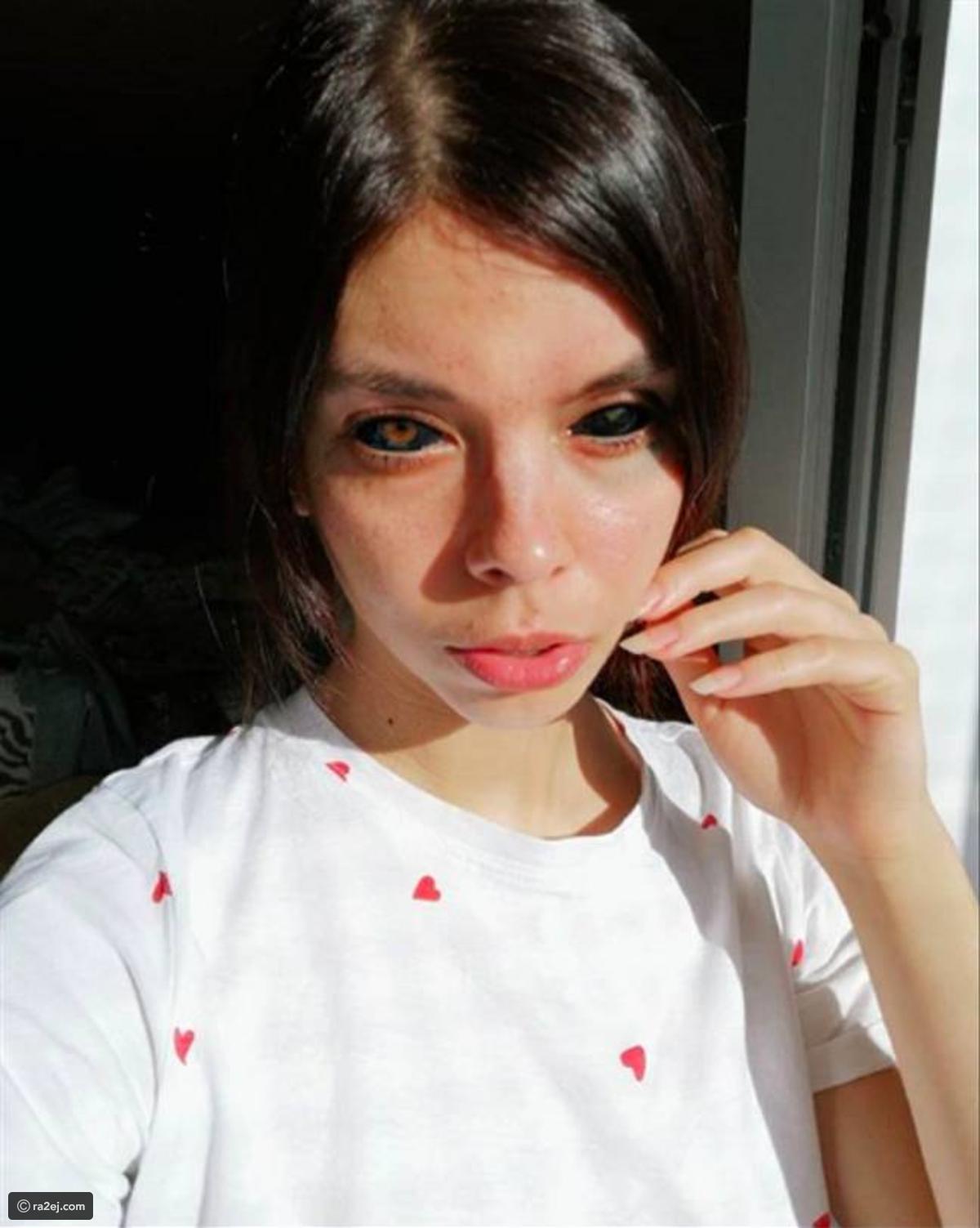 Mulher fica cega na Polônia após uma dolorosa tatuagem no olho