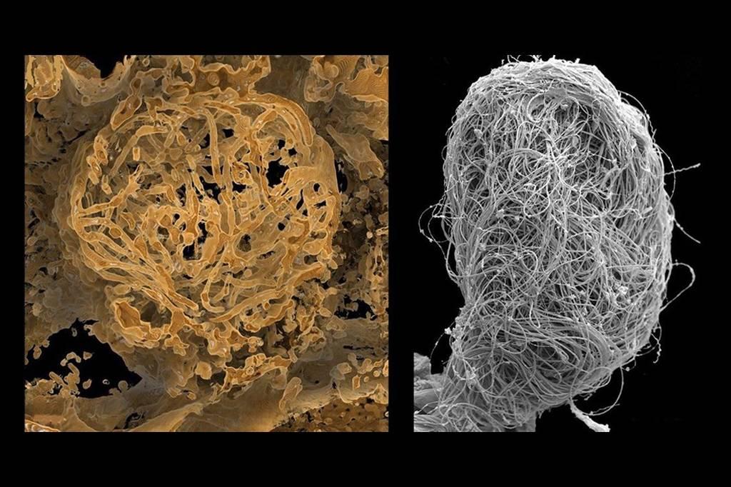 Cientistas descobrem células de esperma gigante com 100 milhões de anos