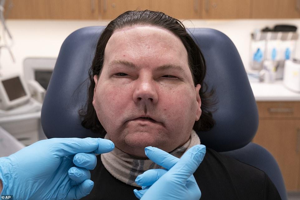 Homem recebe novos rosto e mãos em transplante raro