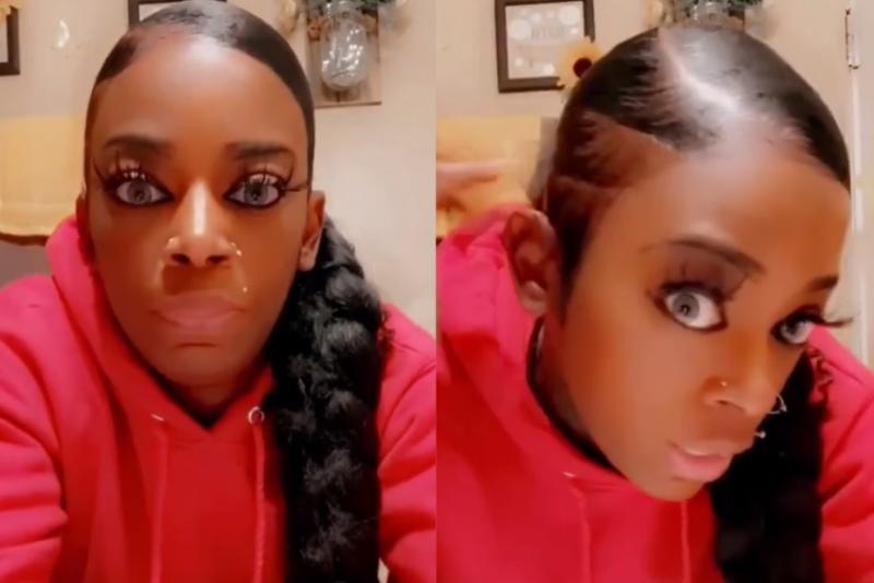 Mulher que colou seu cabelo por engano começa a arrecadar fundos para tratamento